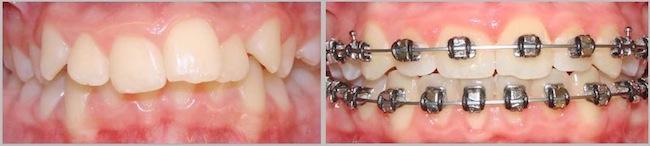 Doil Kim Orthodontics